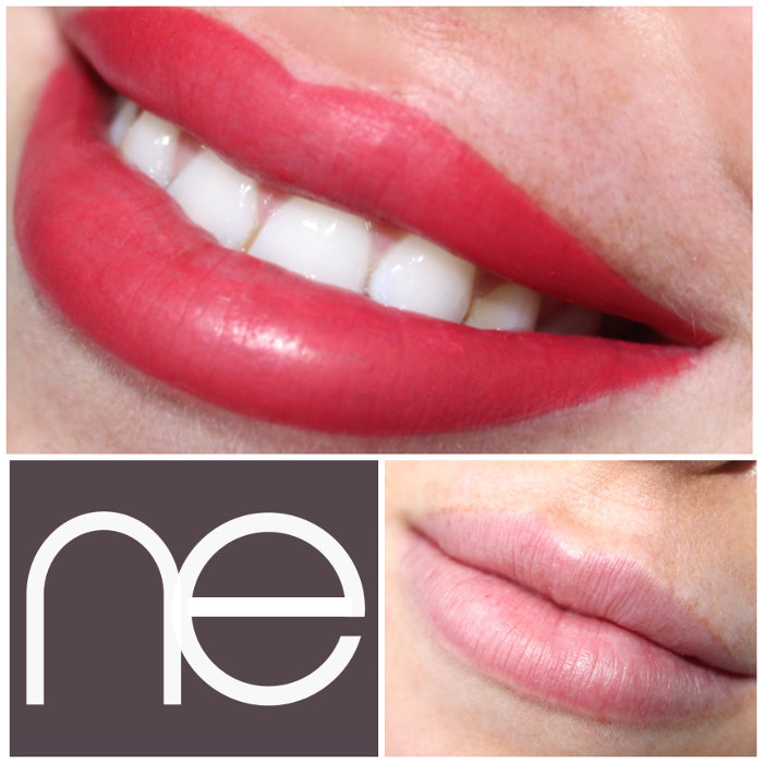 Natural Enhancement Lips